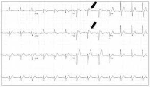 Sindrome di Brugada (Morte Cardiaca Improvvisa)  http://thedailynurse.eu/blog/2014/11/11/sindrome-di-brugada-morte-cardiaca-improvvisa/