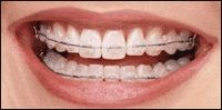 Orthodontic Treatment has evolved over the years and so has Sweet Smile Dental Clinic. For invisible braces, orthodontic braces in pimpri and shorter treatment, orthodontic braces in pune visit Dr. Sandeep Bhirud & Sweet Smile Dental Clinic in Pimpri. For More Details Visit: http://www.sweetsmiledental.com/dental-treatments/best-orthodontist-in-pimpri-chinchwad-pune/