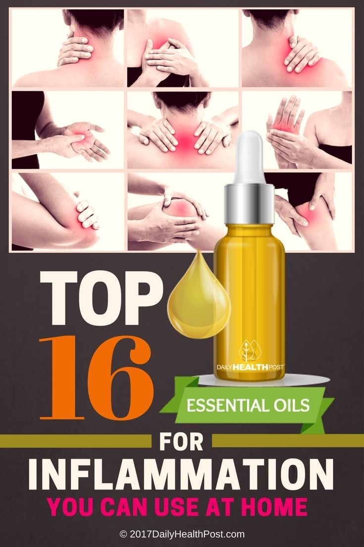 Top 16 Essential Oils for Inflammation You Can Use at Home via @dailyhealthpost