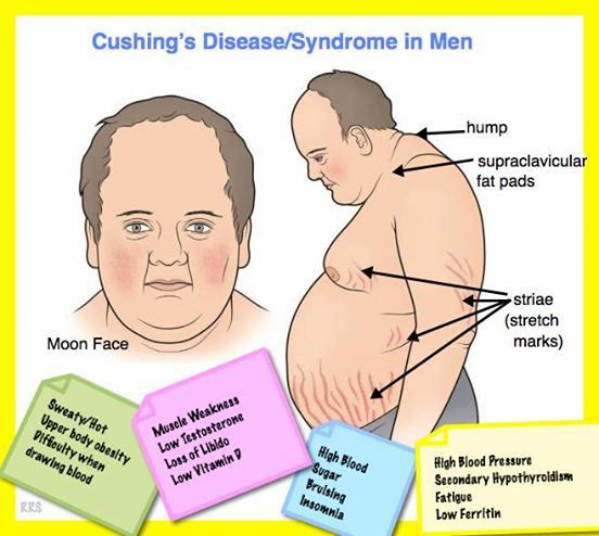 cushing women What are the symptoms of cushing's syndrome the main signs and symptoms are shown in table 1 not all people with the condition have all these signs and symptoms.
