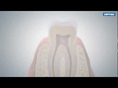 3D Video: DENTAID technology nanorepair #OralHealth