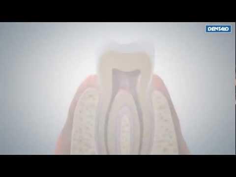 3D Video: DENTAID technology nanorepair #OralHealth