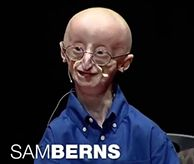 "Sam Berns' TED Talk - Hutchinson-Gilford Progeria Syndrome (""Progeria"", or ""HGPS"") is a rare, fatal genetic condition characterized by an appearance of accelerated aging in children. Its name is derived from the Greek and means ""prematurely old."""
