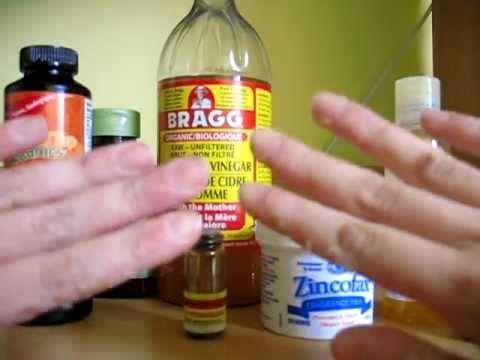How To Get Rid Of Dyshidrotic Eczema Naturally