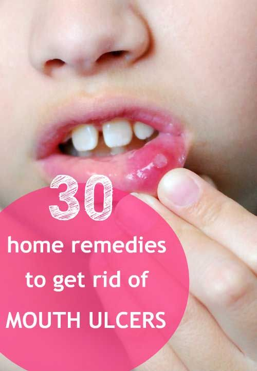 30 Home Remedies for Treating Mouth Ulcers #mouthulcers #homeremedies #naturalremedies