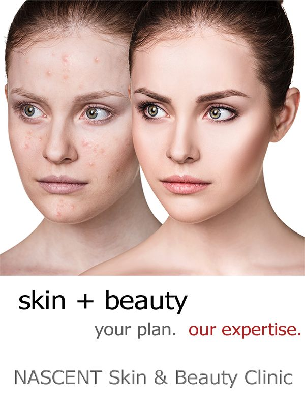 NASCENT Skin & Beauty Clinic Skin and Beauty Specialists  We Have the Best Skin Specialists We Use the Best Equipment We Stock the Best Skin Care Range   WE MAKE NO COMPROMISES  Isn't That What You Deserve?
