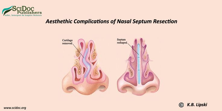 Violation of nasal breathing mostly related to nasal septum deformation, which is an indication to perform septoplasty. This article represents our observations about the possible cause of aesthetic complications after nasal septum resection; the technique we us for prevention of such complications, clinical cases and treatment results.