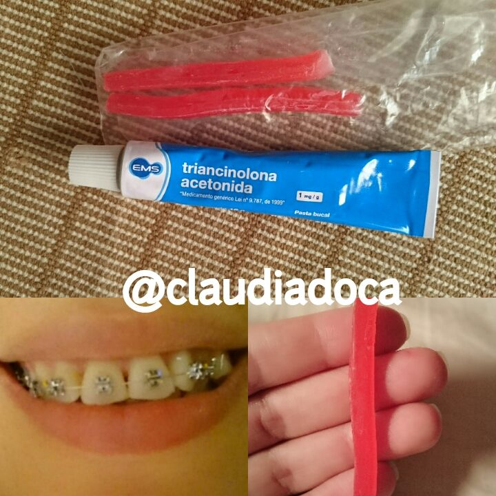 Aparelho Ortodontico fixo, Como Aliviar a Dor dos Primeiros Dias.