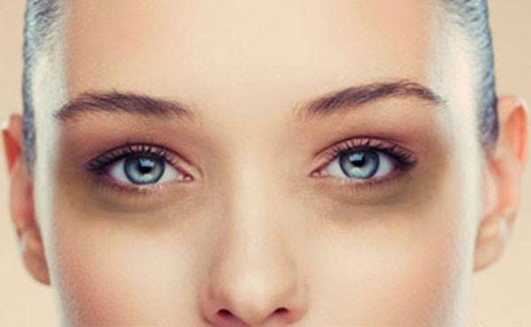 Cum folosesti bicarbonatul de sodiu pentru atenuarea cearcanelor si a pungilor de sub ochi