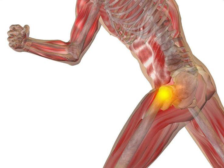 A bursite trocantérica é causa comum de dor na região do quadril, afetando principalmente corredores. Aprenda mais sobre suas causas, sintomas e tratamentos