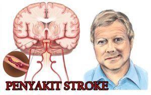 http://infogamat.com/obat-untuk-membantu-meringankan-seseorang-yang-terkena-penyakit-stroke-mendadak/ | 082214876866