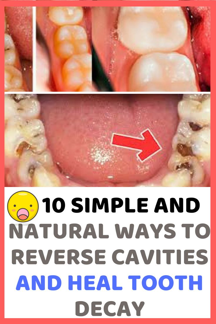 how to reverse cavities in toddlers naturally