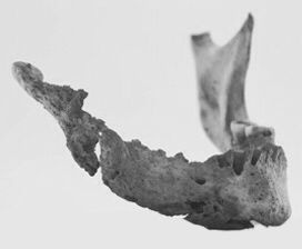 """Phossy Jaw. The girls who suffered with phossy jaw ( """" Matchgirls"""" working with white phosphorus) would begin experiencing agonising toothaches and a swelling of the gums. Over a period of time, the jaw bone would begin to abscess, and start to glow a greenish-white colour in the dark. The decaying bone tissue would eventually rot away, and the open wounds would run, giving off a foul-smelling discharge. Finally, the disease would lead to serious brain damage and death."""