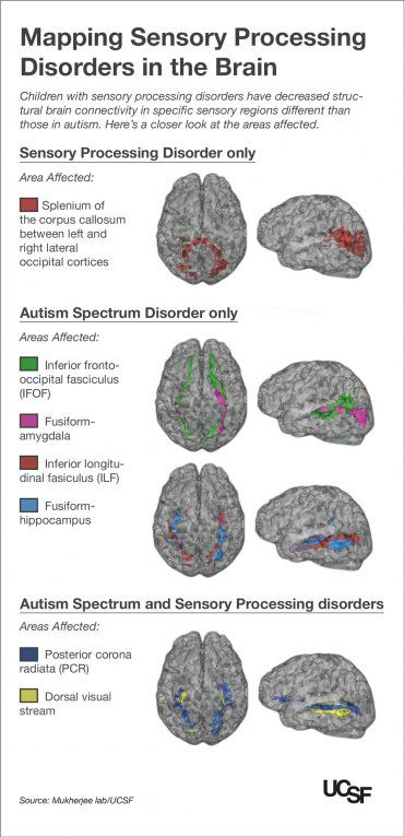 Kids with Autism, Sensory Processing Disorders Show Brain Wiring Differences | ucsf.edu
