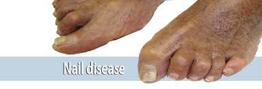 how to get rid of foot fungus between toes