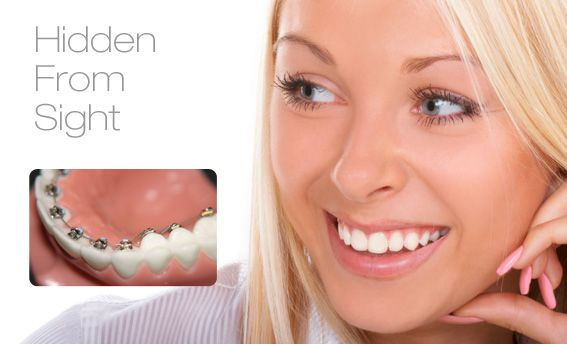 incognito braces, DDS Simona Salavastru,invisible braces,any age braces,orthodontics