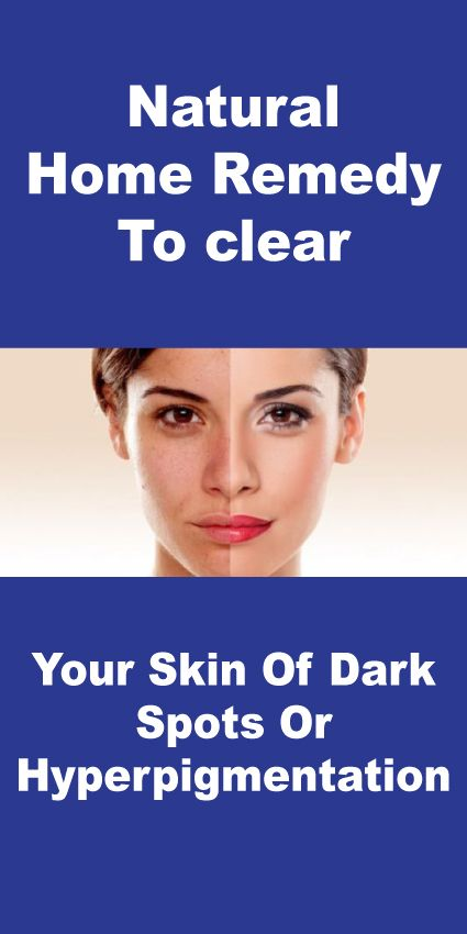 how to clear your skin fast at home