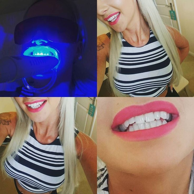 Quick 25min top up makes such a difference ! #whiteteeth #teethwhitening #smile by izzaykd Our Teeth Whitening Page: http://www.myimagedental.com/services/cosmetic-dentistry/teeth-whitening/ Other Cosmetic Dentistry services we offer: http://www.myimagedental.com/services/cosmetic-dentistry Google My Business: https://plus.google.com/ImageDentalStockton/about Our Yelp Page: http://www.yelp.com/biz/image-dental-stockton-3 Our Facebook Page: https://www.facebook.com/MyImageDental Image Dental…