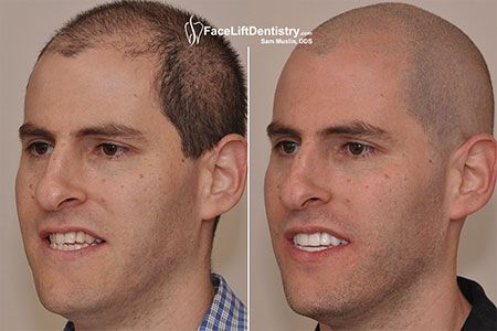 Dr. Sam Muslin is able to change the shape of your face by their non-invasive Overbite Correction treatment. He is professional and expert Cosmetic Dentist and he know which cosmetic treatment is best for you. Visit the presented URL to know more.     #noninvasiveOverbiteCorrection