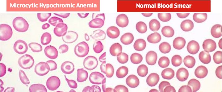Microcytic Hypochromic Anemia vs. Normal Blood Smear Rosh Review