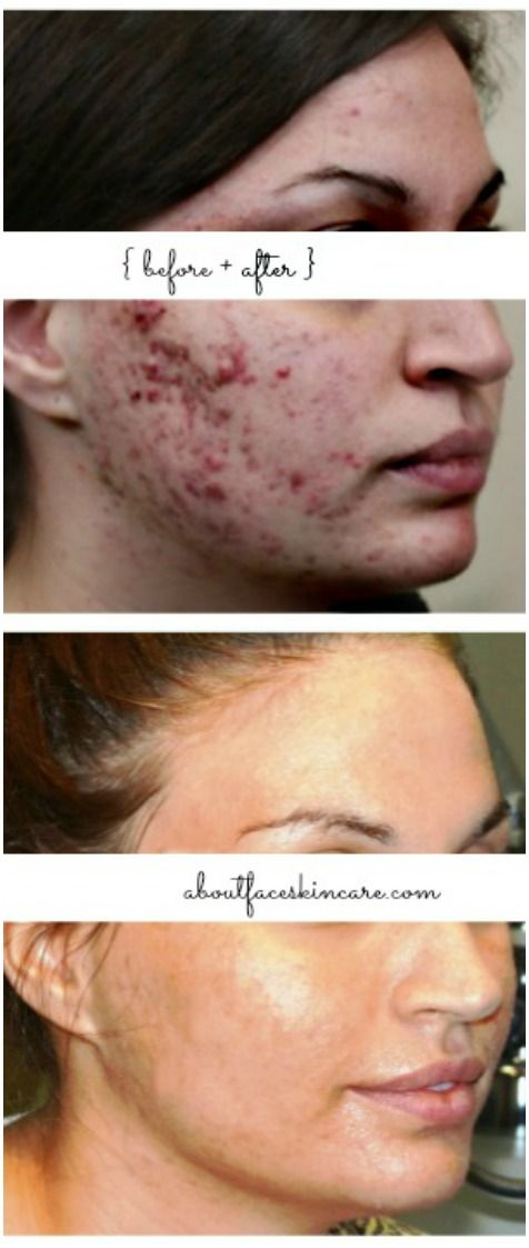 Before + After Acne Treatment: A combination of laser treatments and home-care helped clear this patient's severe acne. #acneresults #acnebeforeandafter #isolazphiladelphia #fraxelphiladelphia #porification #phillyskincare
