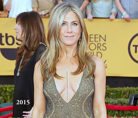Jennifer Aniston Plastic Surgery Before And After Photos