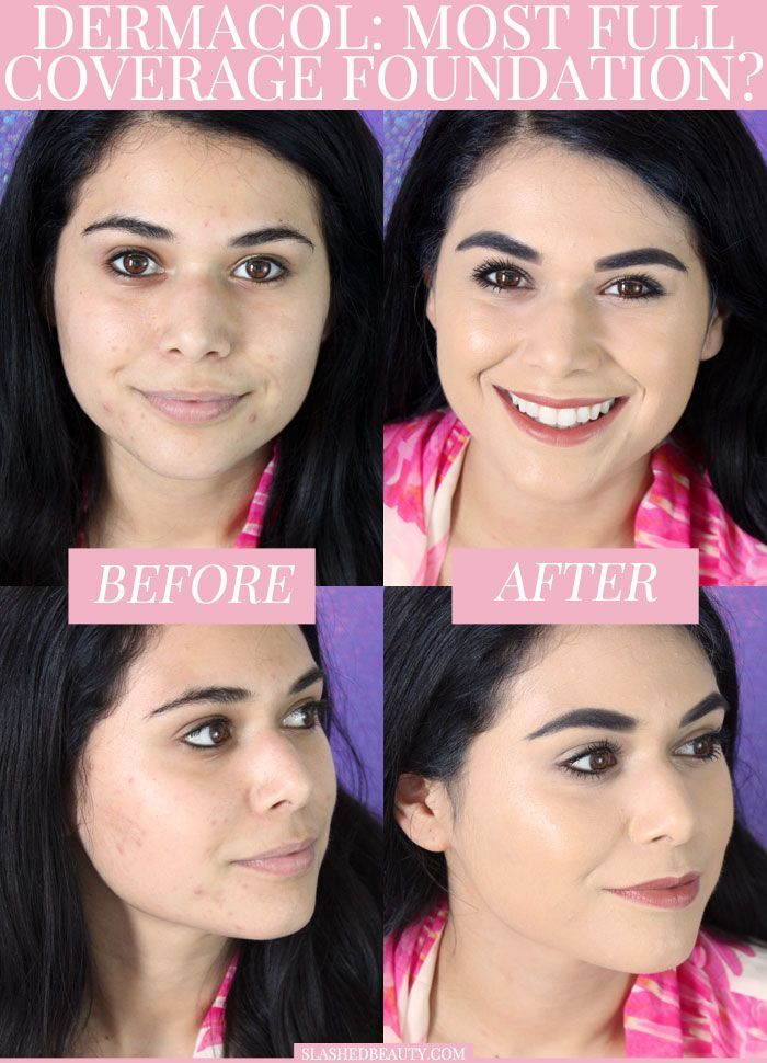 See if the Dermacol Makeup Cover Foundation is truly the most full coverage foundation ever! See the coverage in action and the wear test in the video. | Slashed Beauty