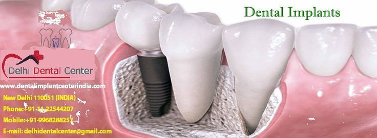 #affordable #dental #implants india, cheap permanent dentures, implant dentures, fixed denture india  http://www.dentalimplantcenterindia.com/affordable-implant-dentures-india.php  best price affordable low cost of Full mouth Immediate loading immediate function dental implant fixed porcelain or metal free zirconia crown and bridge work in India by Implant dentist from 6000 USD$ onwards.