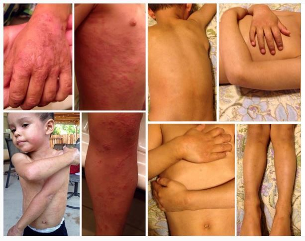 """Jose, 3. On treatment for 11 months. Started on 4-5 apps, now only 1x a day on his hands. """"My son started the treatment in April '15 in cream form & it didn't work for him at first. Then Dr. Aron wrote it for us in ointment form & he improved tremendously! Sometimes I think back to everything we used to go through with wet wrapping, countless ointments, creams... I'm just so amazed at how our lives have changed! The first 2.5 years of my son's life were consumed by eczema and now we are…"""