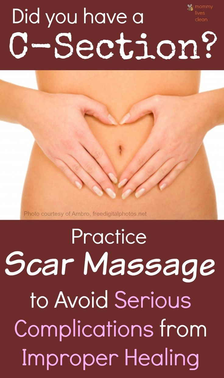 Do you massage your C-section scar? Massage helps to avoid adhesions - scar tissue which binds organs together causing serious problems later in life. Its never too late to start!