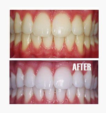 Natural solution To whiten your. For a quick way to whiten your teeth in the morning, sprinkle baking soda into your palm, dip a damp toothbrush into it, and brush.  Then rinse and follow with your toothpaste. For an antifungal mouthwash, mix one teaspoon baking soda in 1/4 glass of water and swish the solution through your teeth.