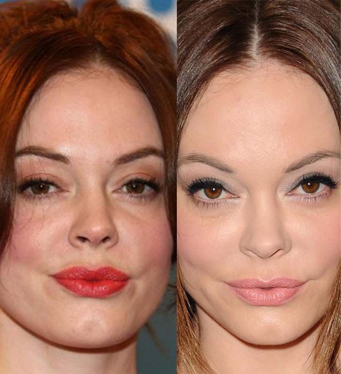 Rose Mcgowan lips seem changed a bit. It is probably done by lip implants. What other plastic surgery she did?