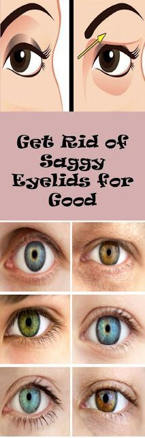 Get Rid Of Saggy Eyelids For Good!
