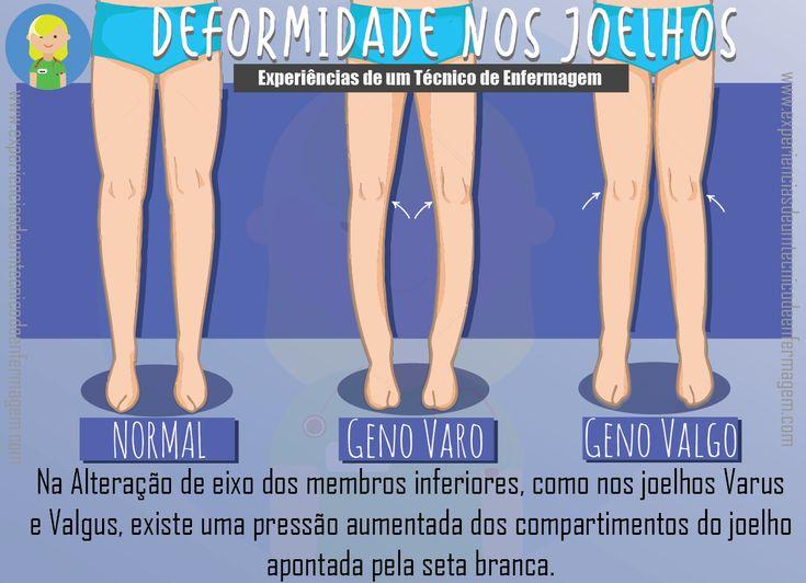 Os joelhos apresentam alinhamento no plano frontal que varia do valgo ao varo. O geno valgo é fisiológico dentro de valores em torno de 5 a 7 graus. O valgo, em linguagem leiga, apresenta-se comjo…