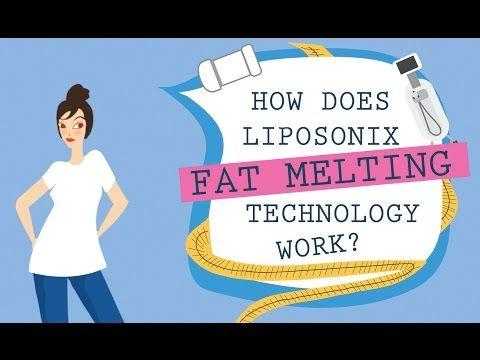 Liposonix - Medical Institut