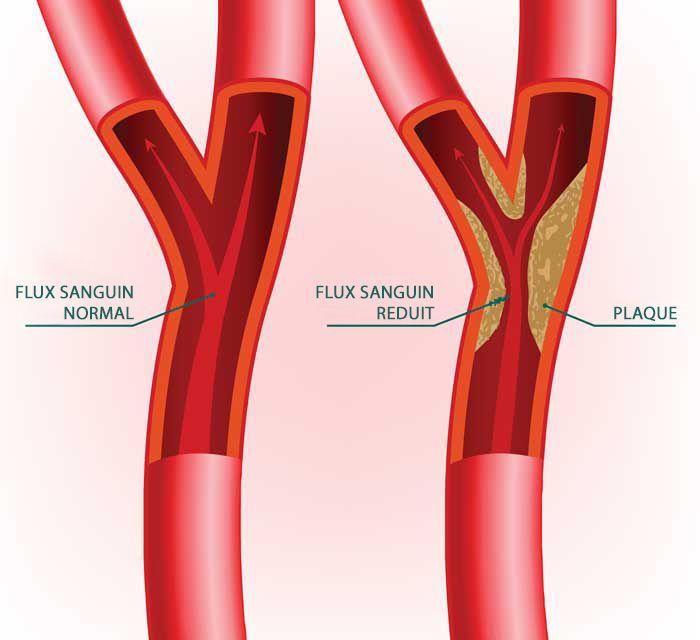 Etude : les statines n'abaissent pas le cholestérol mais augmentent le risque de cancer et de perte de mémoire