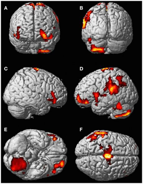 Scientists scan a woman's brain during out of body experience: There's obviously something happening in her brain that is making her experience the world in a different way, stimulating the supplementary motor area, the cerebellum, the supramarginal gyrus, the inferior temporal gyrus, the middle and superior orbitofrontal gyri.