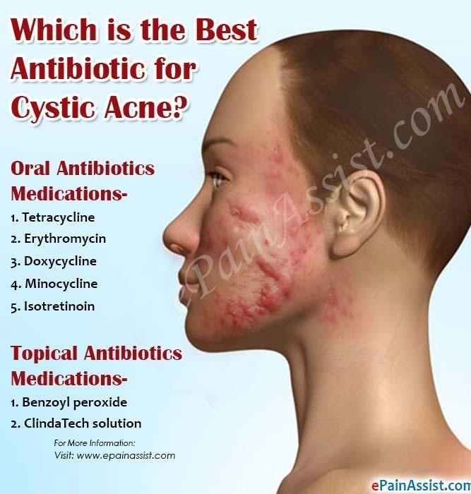 Nodular Acne With Images Nodular Acne Acne Cystic Acne