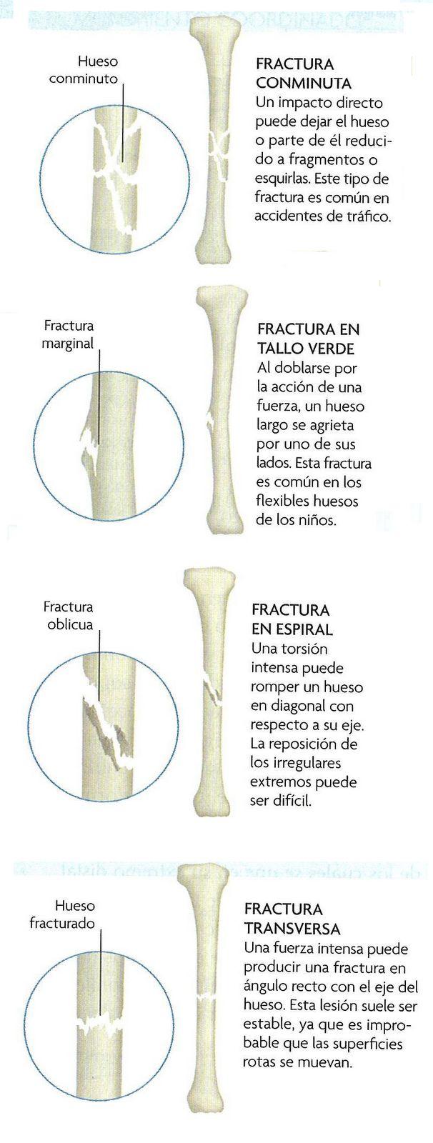 Fracturas Oseas | Reparación Ósea ~ Ciencias de la salud #Traumatología