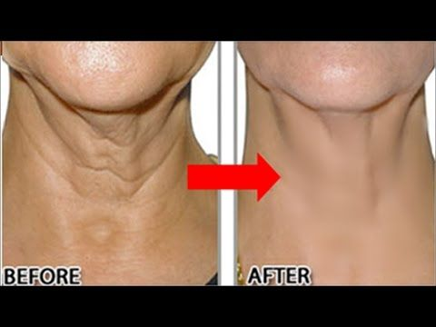 How To Remove Neck Wrinkles Permanently In 2 Months! Look 10 Years Young...