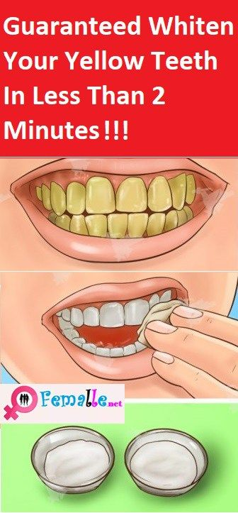 Guaranteed Whiten Your Yellow Teeth In Less Than 2 Minutes Health
