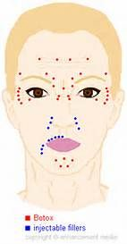 Botox Injection Sites Chart - Bing images