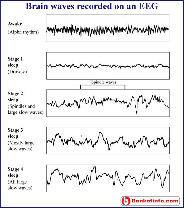 This lines are sections from an EEG print-out. Each of the bottom four brain-wave patterns is distinctive of a particular stage of sleep.