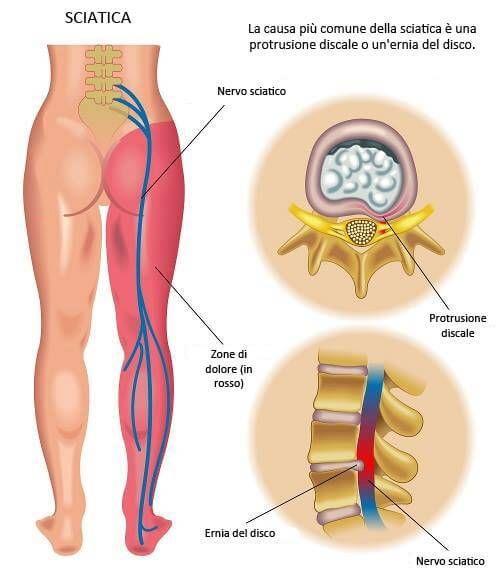 Cura della sciatica Nella maggior parte dei casi, la sciatica scompare da sola, ma possiamo accelerarne la guarigione e alleviare il dolore seguendo alcuni consigli:     Riposo assoluto per 24 ore. Riposate nel letto, posizionandovi sul fianco e con un cuscino tra le gambe, oppure a pancia in su con un cuscino sotto le ginocchia. Non dormite mai a pancia in giù in caso di attacco di sciatica. Durante i primi giorni applicate del ghiaccio sulla zona che vi fa male per calmare l'infiammazione…