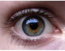 HETEROCHOMIA Of The Eye - There are three types of Heterochromia: Complete, Sectoral and Central. 'Complete' is when each eye is a different colour, 'Sectoral' is when there's a splash of colour different from the dominant hue and 'Central' (which is what you have Rae), is when there is a ring around the pupil that is a different colour than the rest of the eye. Any research I've found thus far suggests that Heterochromia occurs in approximately 1% of the polulation.