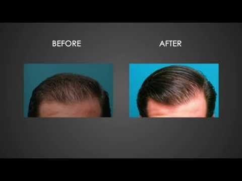 Discount Laser Hair Growth | Where to buy laser hair growth equipment