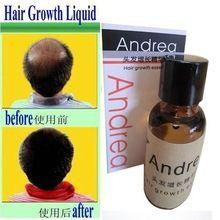 Andrea Crescimento Do Cabelo anti Perda de Cabelo denso cabelo Líquido 20 ml sunburst crescimento do cabelo crescer rápido reembolso inválido alopecia alishoppbrasil