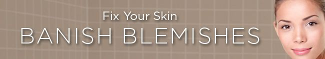 30 Beauty Tips: Get Rid of Acne for Smooth Skin | Women's Health Magazine