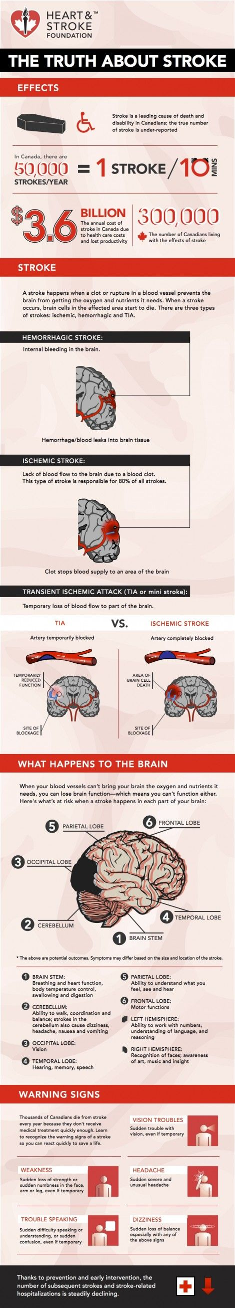 29 best Stroke Awareness and Prevention images on Pinterest | Diff ...