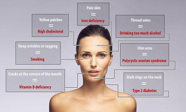 Revealed... what your FACE says about your health #DailyMail